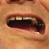 奥歯末端部の歯磨き法