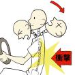 頚椎から頭にかけて電気ぐ走ったような痛み      金沢市   交通事故  むち打ち