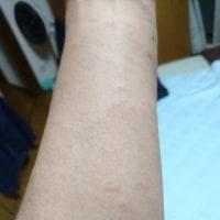 蕁麻疹。。