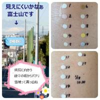 金属アレルギー検査・初日