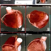 冠動脈CT-A検査結果