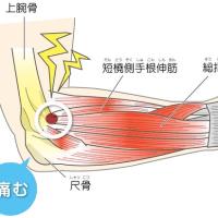 肘外側の痛み       金沢市   慢性腰痛専門   整体院   樹