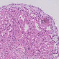Parietal cell protrusion, parietal cell hyperplasia (3)