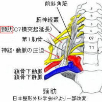 胸郭出口症候群の針灸治療 Ver.1.3