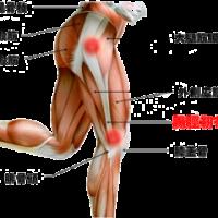 膝外側の痛み・・・腸脛靭帯症候群