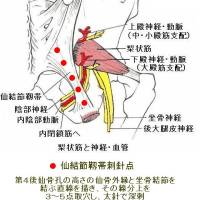 仙結節靱帯刺針の効果 Ver.1.1
