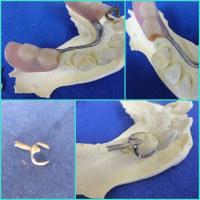 即日の義歯修理と事前印象即日義歯修理