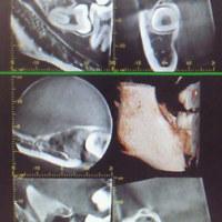 下顎の難しい親知らずの抜歯でも、インプラントでも腫らせない、痛がらせない