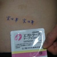 2/28臼井医院 体外受精ホルモン補充&凍結胚盤胞移植周期前半戦その1