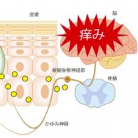 RESEARCHERS ID CAUSE OF ECZEMA ITCHINESSアトピー性皮膚炎のかゆみを特定