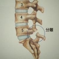 腰椎分離すべりと診断された10才の女の子      金沢市   整体