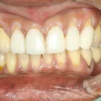 下がってしまった歯茎を再生させるたった1通りの方法