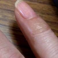 手の皮、ずる剥け
