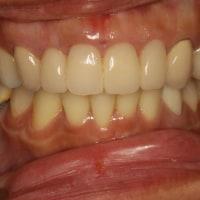 なぜ前歯の差し歯の歯茎が下がって黒く見えるのか?また、治療方法は