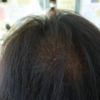 抜け毛、薄毛のための育毛コースの流れ その3。 伊那市の理容店 ヘアーサロン オオネダ