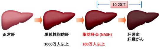 alcoholic hepatitis steroids score