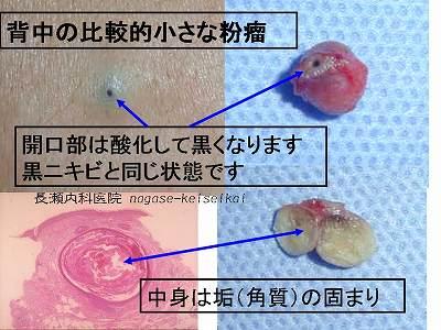 粉瘤(ふんりゅう)、表皮嚢腫(...