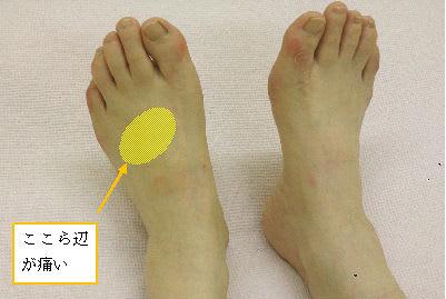 靴を履いて歩くと足の甲が痛い ...