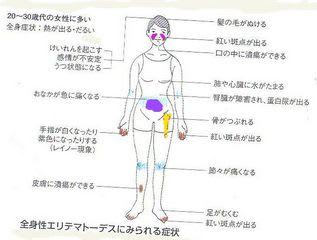 国民的英雄長嶋茂雄を支えた膠原病の妻亜希子さん 私は野球に関してはあまり...