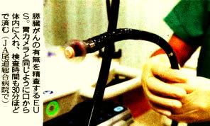 膵臓がんの有無を精査するEUC