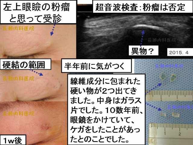 二重(ふたえまぶた)のラインは全く変化していません。 部位別に戻る · 目次に戻る 2015.4の手術です。粉瘤 ではない症例です。超音波検査でわかります。