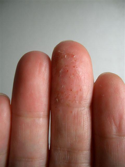 異汗性湿疹 いかんせいしっしん(汗疱状湿疹) - ハワイ・アロハ! ブログ ログイン ランダム