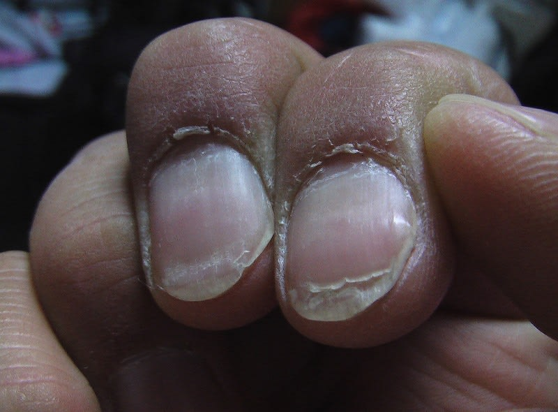 爪が割れやすいのは栄養 ... - skincare-univ.com