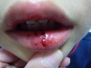 腫れ 唇 唇が腫れる原因と正しいリップケアの方法