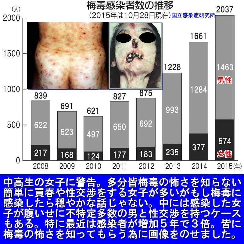 【医療】キスでも感染!急増する「梅毒」の強力な感染力とは [無断転載禁止]©2ch.net YouTube動画>1本 ->画像>71枚