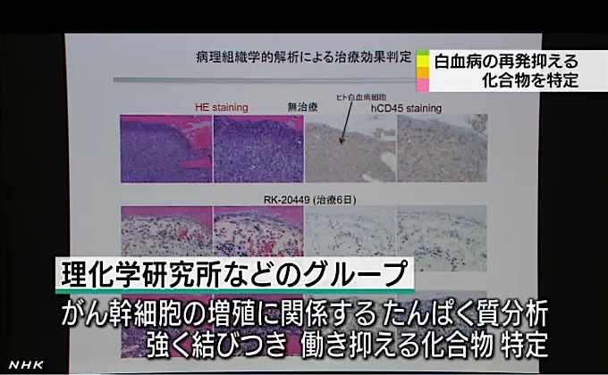 白血病 治る: 「急性骨髄性白血病」の再発率の高いタイプ、30%が「治る病気