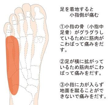 """足底の痛み① 着地すると小趾側が痛む - """"からだ""""について ..."""