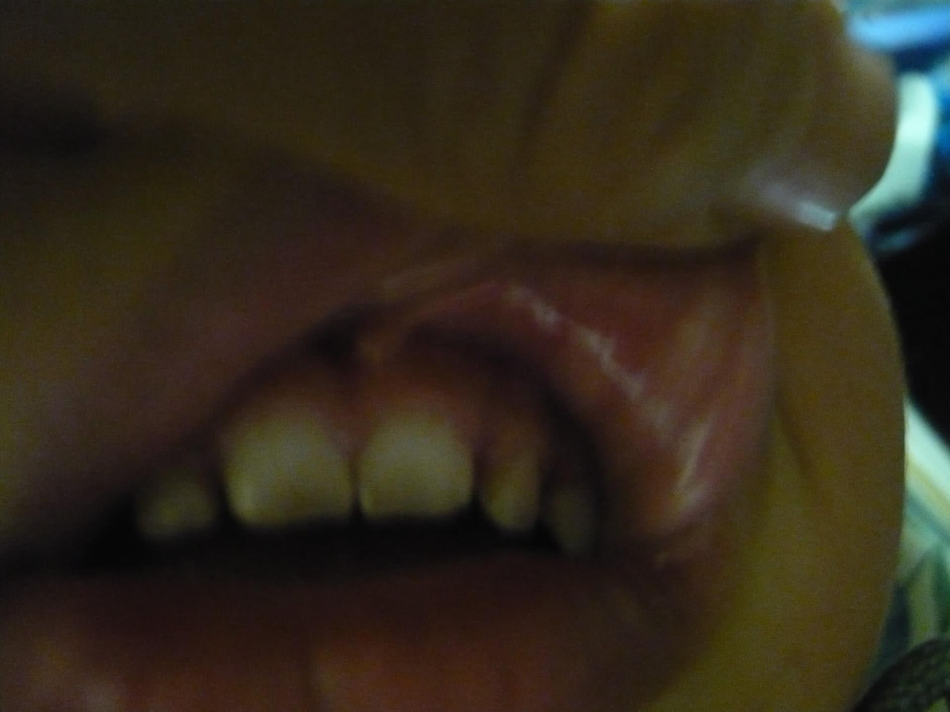 口内炎 舌先