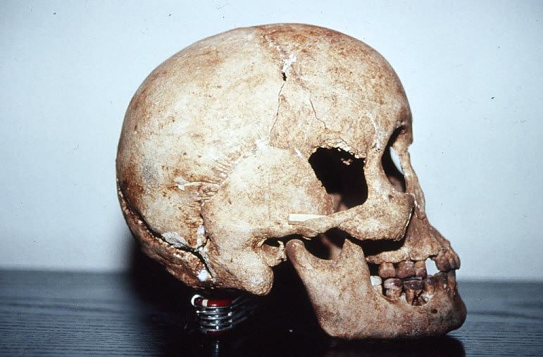 私の仕事:発掘調査・ロタ4.ラッテ・ストーン遺跡出土人骨 - 人類学のススメ