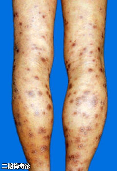 感染部位に硬性下疳というグリグリしたしこりが出来、膿を出しますが痛みがなく、すぐに消え次に横痃という足の付け根のリンパ節に腫れが出る。治療をしなくても数週間