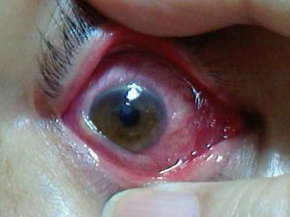アデノ ウイルス 結膜炎