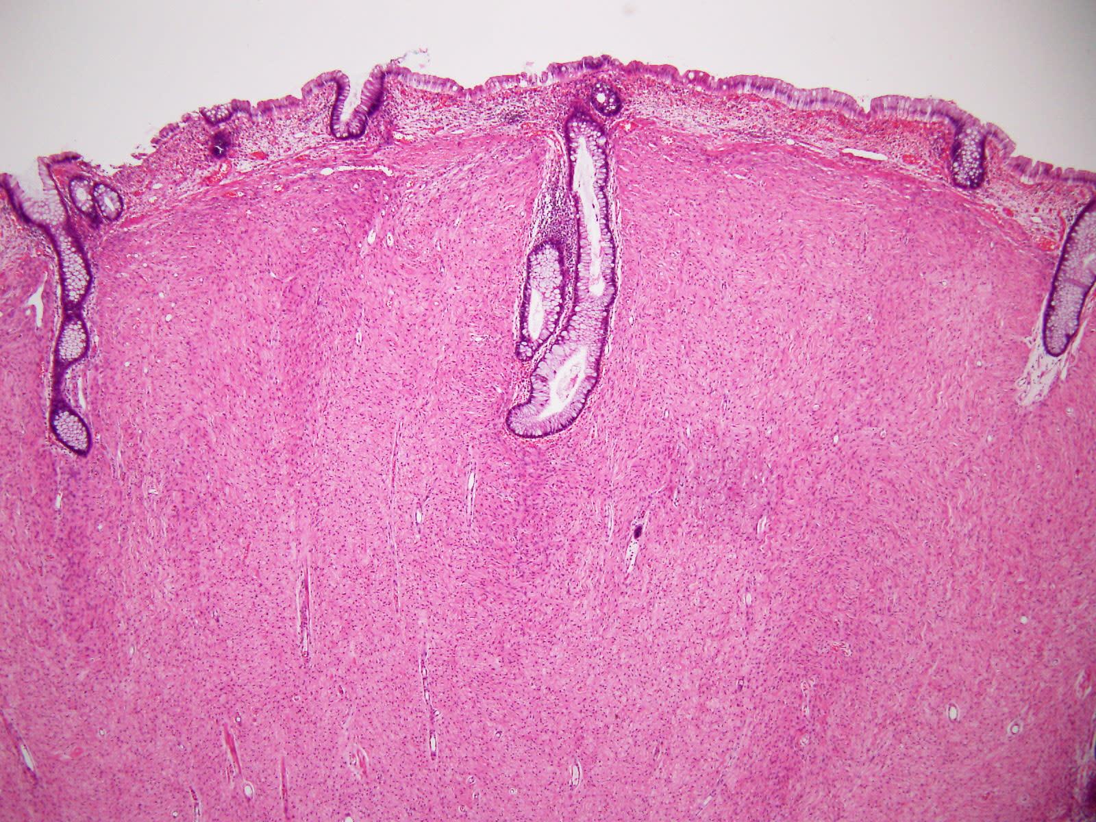 2010-06-18 | 非上皮性腫瘍