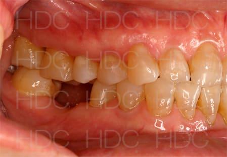 長谷川歯科医院のブログ