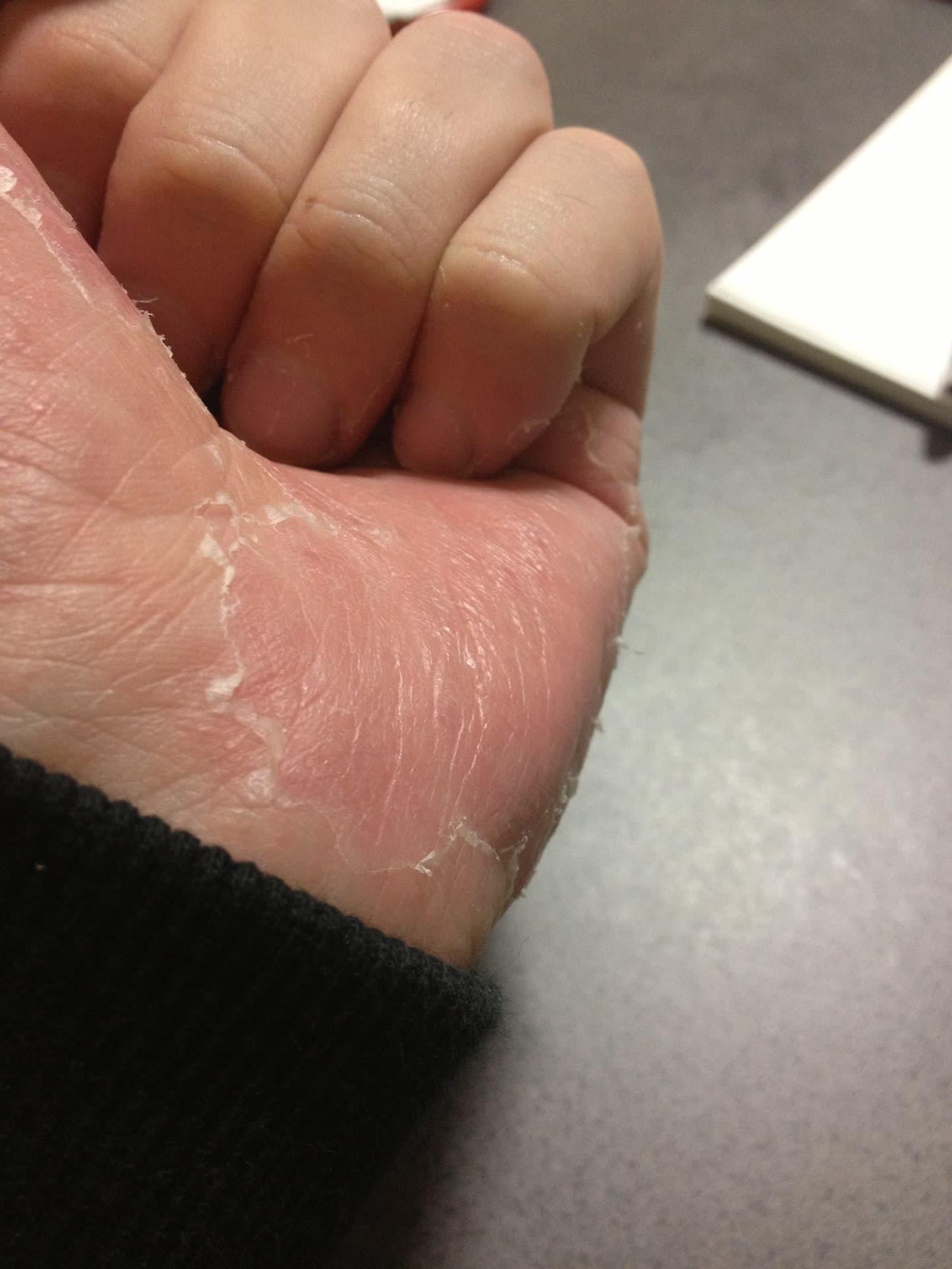 皮 が むける 手のひら 病気 の 手のひらが赤い:医師が考える原因と受診の目安|症状辞典