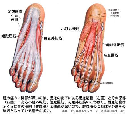 """足底の痛み② 踵の痛み - """"からだ..."""