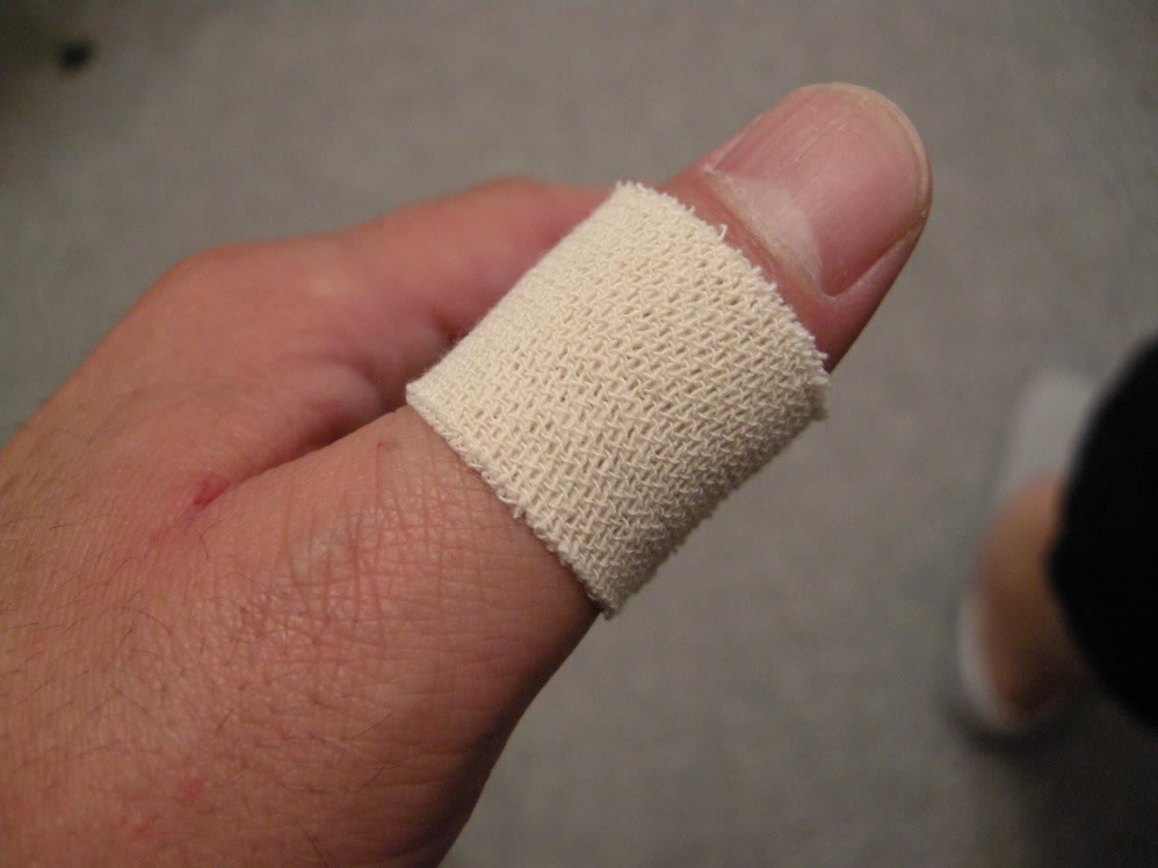 親指 の 付け根 が 痛い