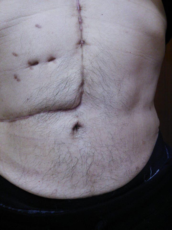 十二指腸癌の初期症状!手術での生存率は?末期の場合はほぼ助からない? | 腸の病気.net