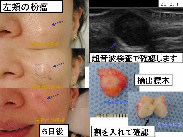 超音波検査では比較的境界明瞭な粉瘤だと思われます。 頬のシワの線に沿って、切開し、摘出しました。