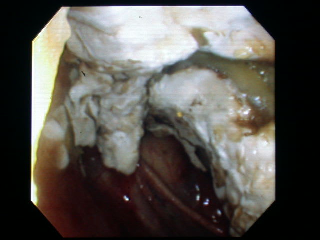 喉嚢真菌症の内視鏡像 - 馬医者...