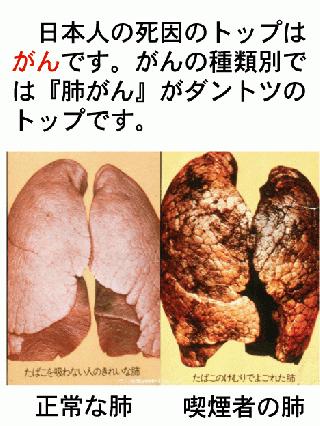 漢字 1年生 漢字表 : 私たちの肺の中には約6億個の ...
