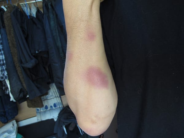 足にも青タンがありますが,お見苦しいので写真は止めにしました. オッサ... オッサンは無理しち