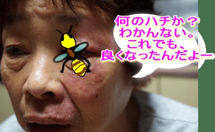 【超びっくり!】ハチに刺されて、塗った薬で顔にカビ!!母 ...