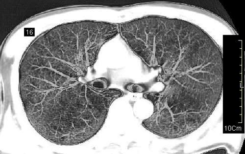 肺気腫のct映像と禁煙 映像大好き