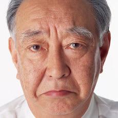 加齢と共にハミ毛率も上昇