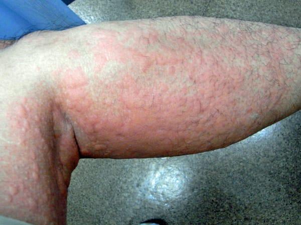 hives rash #10