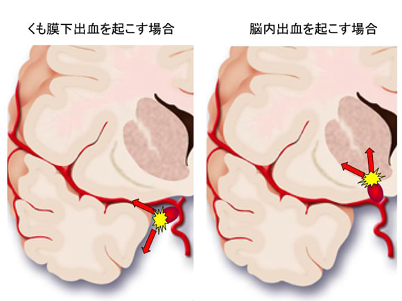 脳内出血 - Intracerebral hemorrhage